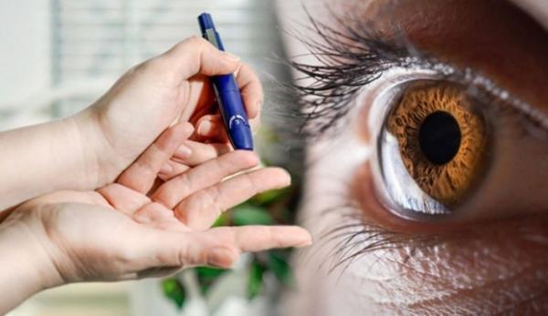 عوارض دیابت در چشم